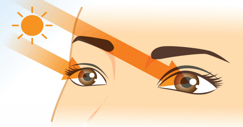 How UV rays damages our eyes